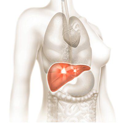 O que pode causar a cirrose biliar e qual o tratamento?