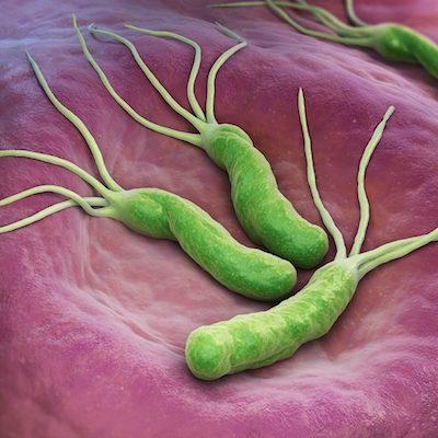 H. pylori: como é feito o diagnóstico e qual o tratamento?