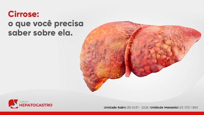A Imagem Mostra Uma Ilustração Digital Do Fígado.