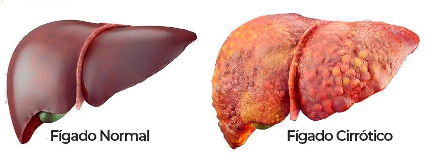 Fígado - Cirrose Alcóolica   Hepatogastro