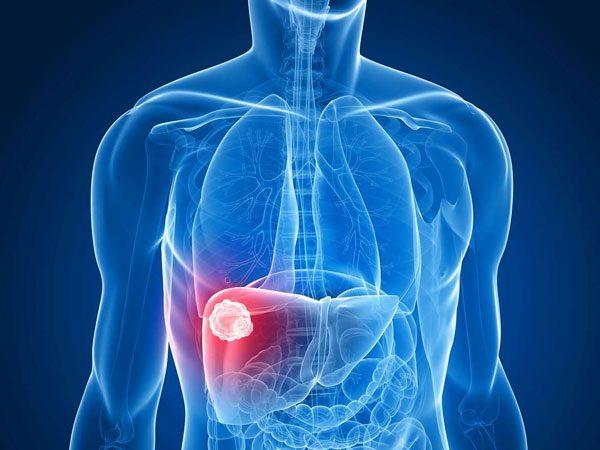 hemagiomas-hepatogastro