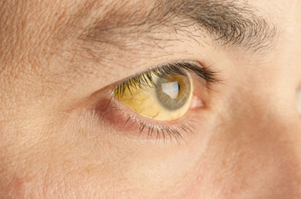 olho hepatogastro