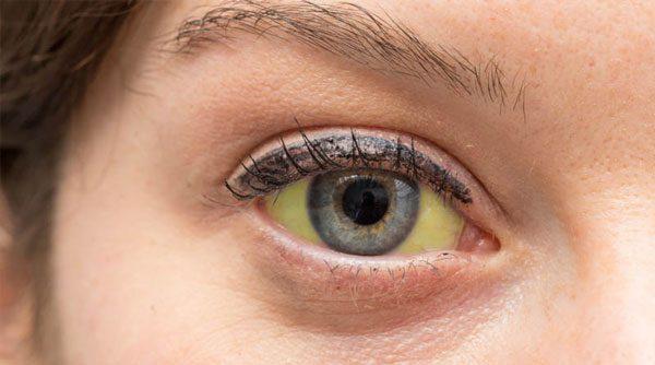 olhos-amarelados