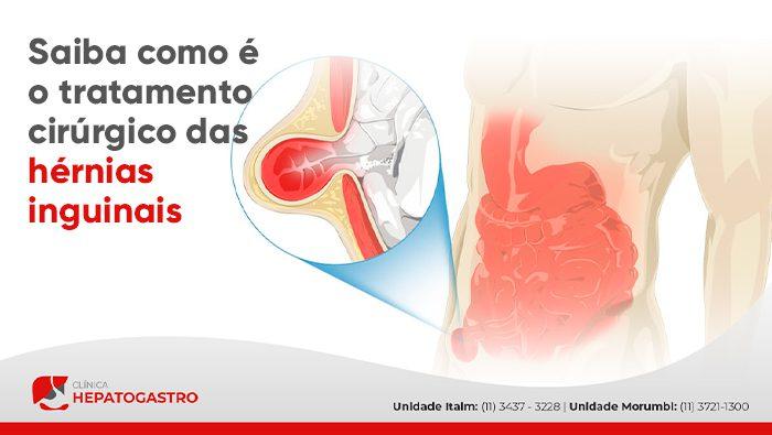 A imagem mostra uma ilustração da hérnia inguinal.